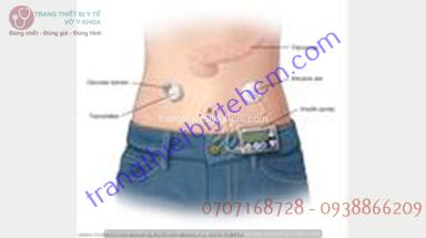 mô phỏng người dùng máy đo đường huyết liên tục CGM